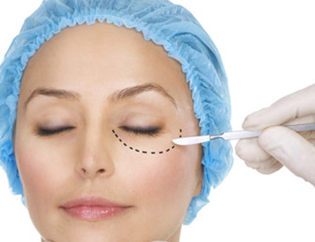 cirurgiapalpebras