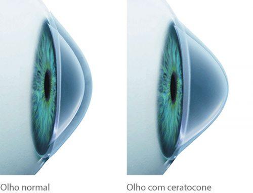 Hábito de coçar os olhos pode prejudicar a saúde ocular