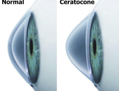 Entenda sobre o Ceratocone, problema causado pelo hábito de coçar os olhos que pode prejudicar a saúde ocular